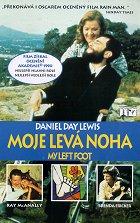 Moje levá noha